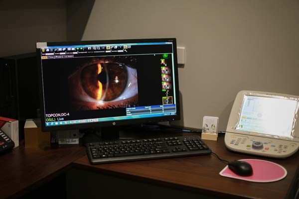 slit lamp examination of a cornea